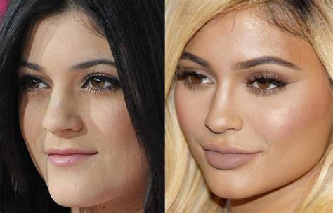 kim kardashian shot glass lips 8 celebs who had plastic surgery can you recognize