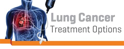 is there a cure for lung cancer imu news lung cancer treatment options