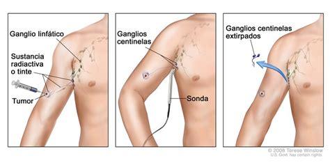 cuales son las cadenas ganglionares del cuello biopsia de ganglio linf 225 tico centinela national cancer