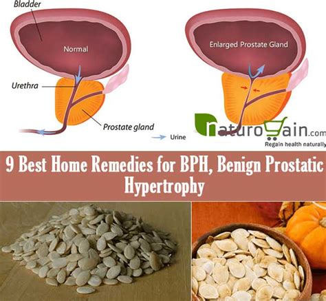 9 best home remedies for bph benign prostatic hypertrophy
