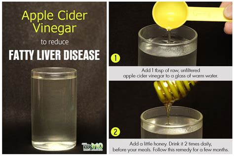 home remedies  fatty liver disease top  home remedies