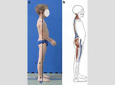 Flat-back posture in a 9-year-old boy. a Habitual standing ... Lengthened Muscles
