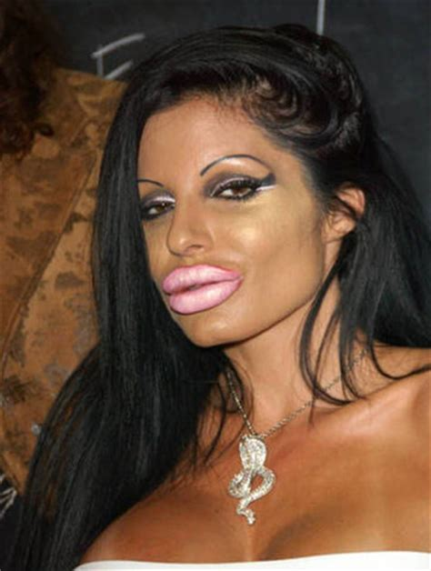 lip implants gone wrong bad lip injections gone wrong cosmetic plastic surgery