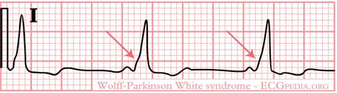 wolff parkinson white pattern ecg file rhythm wpw png ecgpedia