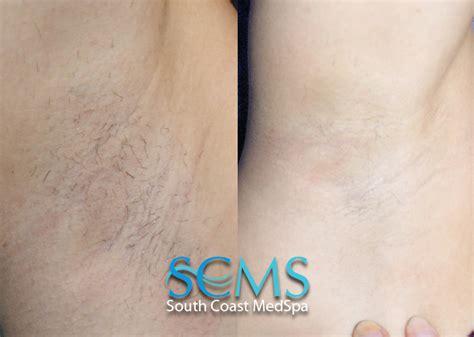 laser hair removal los angeles laser hair removal orange