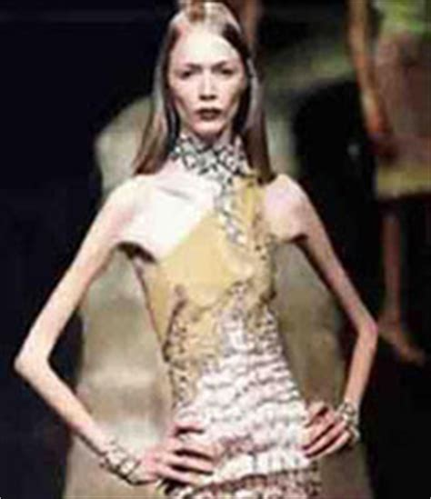 Carolina Reston Second Supermodel Dies Of Anorexia by By Chocolates Xd