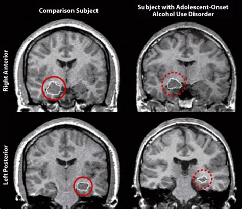 Brain Shrinks To Detox At by Content Repeated Use Of Can Cause Term