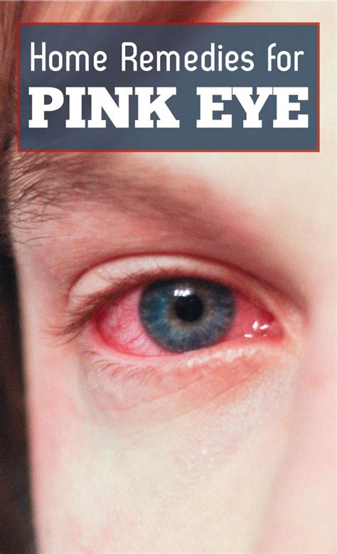 25 best ideas about pink eye treatment on