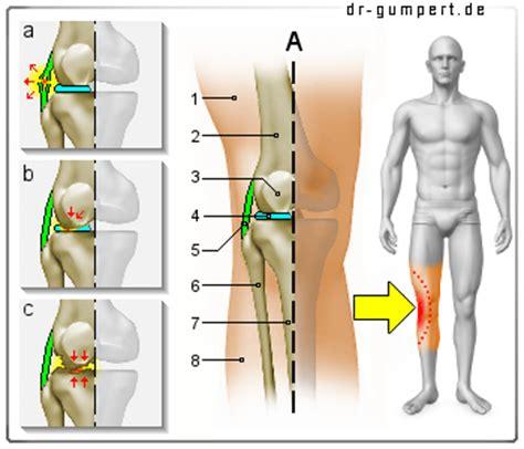 knieschmerzen innen erkrankungen des kniegelenks
