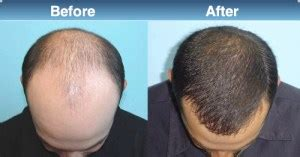 rogaine before and after pictures the gallery for gt hair men back side