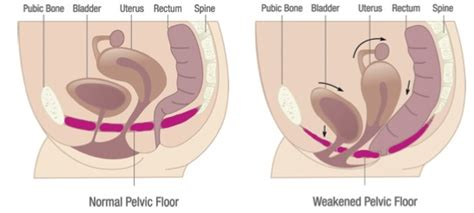 womens health incontinence physiotherapy pelvic floor