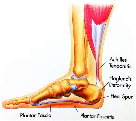 Planter Spur by Treatments In Ayurveda Clinical Experiances Plantar