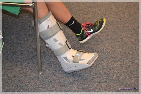boot for sprained ankle max sartin