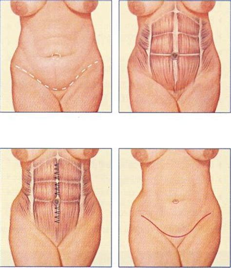 Plastic Surgery After C Section by 20 Best Images About Buikwandcorrectie On