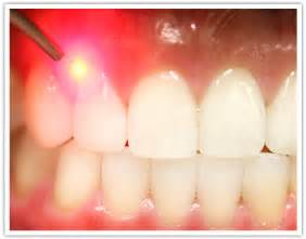 Laser Dentist Newport Laser Dentistry Laser Dentistry Free