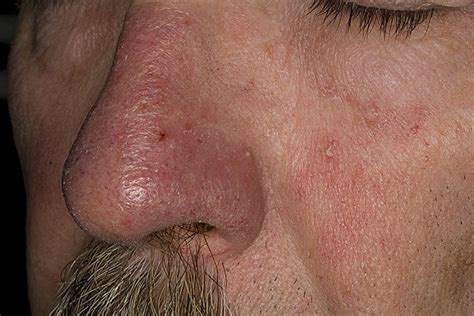 eczema pictures posters news and on your