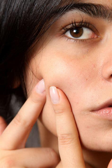 fedra di commercio dopo quanto tempo funziona pillola fedra per acne
