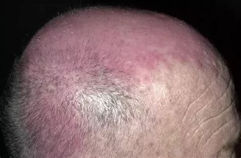 scalp itching and sores how to treat hives on your scalp quora