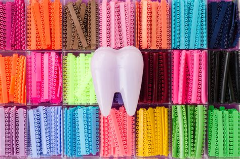 clear braces with color bands make your smile pop erie co