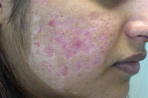 hide hair scar marks pin by peter brandon md on collagen induction therapy