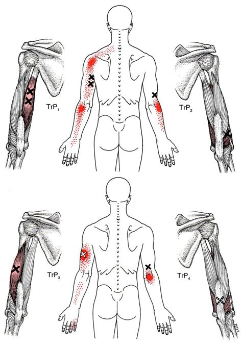 triceps diagram triceps brachii the trigger point referred guide