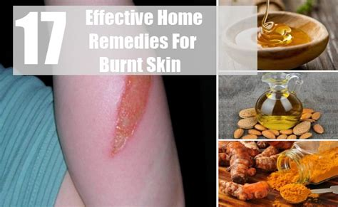 17 effective home remedies for burnt skin