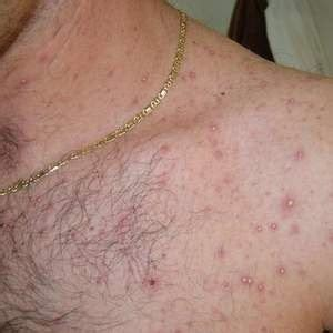 the cause that responsible for barbers folliculitis may be either a folliculitis can caused by bacteria healthy web m d