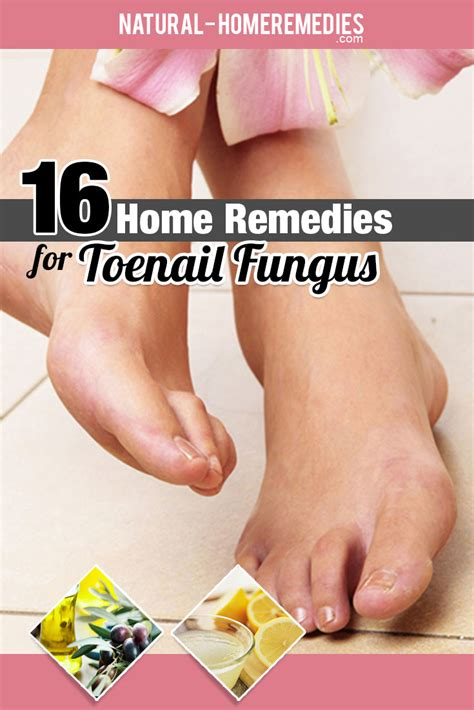 16 home remedies for toenail fungus how to treat toenail