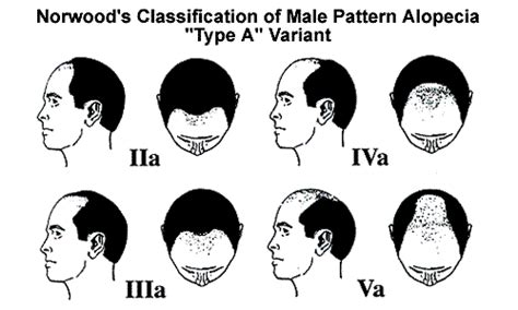Type 2 Hair Loss by Hair Loss Classification Hair Loss In