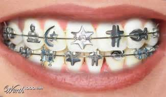 braces color combinations pin braces colors selector on