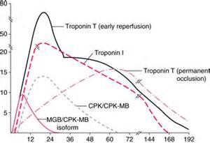 Ricerche correlate a cardiac enzymes markers myocardial infarction