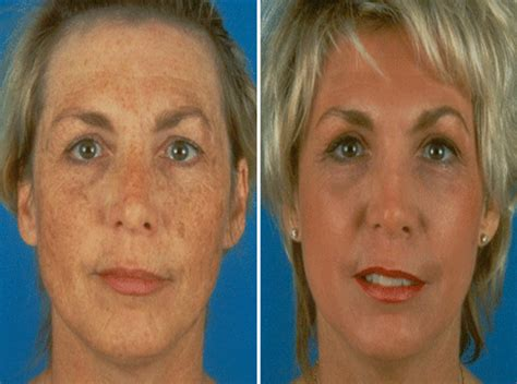 Co2 Laser Pictures laser surgery co2 co2 co2 laser surgery pictures