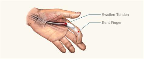 Thumb And Fingers trigger finger treatment stenosing tenosynovitis miami