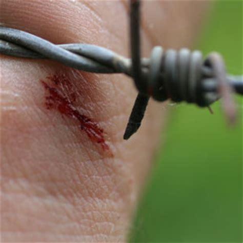 bitten by a do i need a tetanus i stepped on a nail do i need a tetanus buckmd