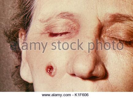 skin on face 53yrs old woman photos cutaneous anthrax stock photo 589642 alamy