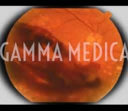emorragia oculare interna retina medica terapie per patologie degenerative della retina