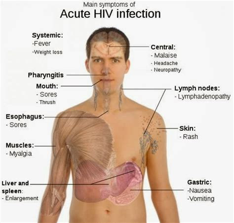 early hiv aids symptoms ehow one of hiv symptoms is rash mother with a mission medium