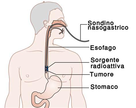 fistola interna file radioterapia interna per tumore esofago svg