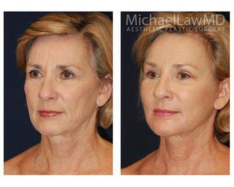 lower face and neck lift lower face and neck lift photo from michael law md