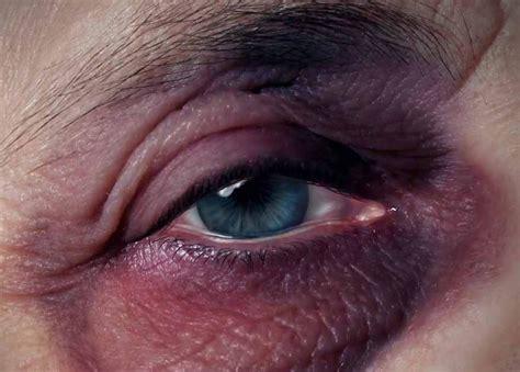 ojo imagenes fuertes videos ojos morados por qu 233 aparecen y cu 225 nto duran los ojos