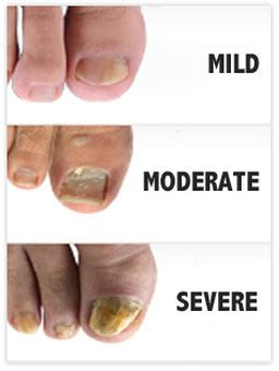 nail bed fungus nail therapy services
