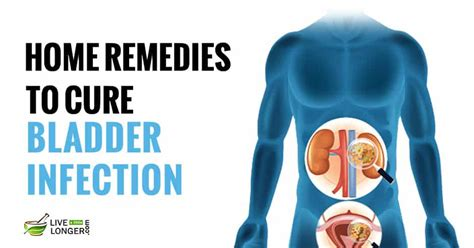 10 best home remedies for bladder infections