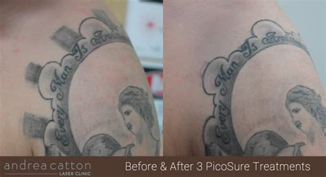 100 picosure tattoo removal uk andrea laser tattoo picosure 174 tattoo removal uk andrea catton laser clinic