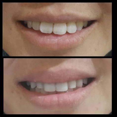 Biaya Pemutihan Gigi Di Jakarta Smile veneer gigi terbaik di jakarta audy dental jakarta dental clinic klinik dokter gigi