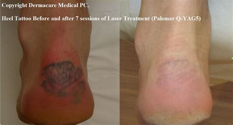 before and after laser tattoo removal removal with salt