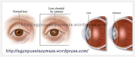 Obat Herbal Penderita Katarak obat herbal ace maxs solusi pengobatan herbal terbaik