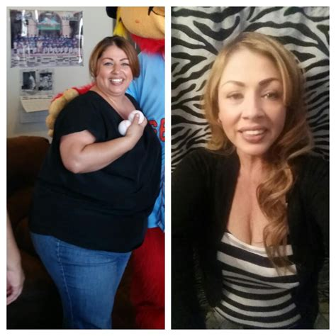 weight loss 6 weeks after gastric sleeve prieto gastric sleeve testimonial success story