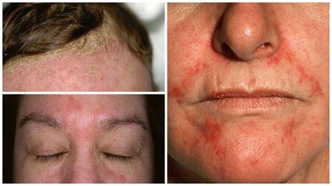 dermatitis en el cuero cabelludo 5 tratamientos efectivos y naturales contra la dermatitis