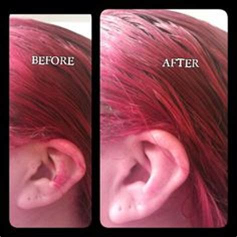how to get hair color your skin 1000 images about how to remove hair dye skin on