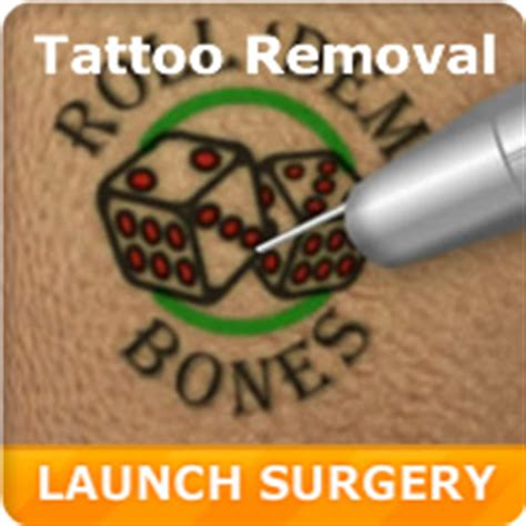 virtual laser tattoo removal surgery games doctor games